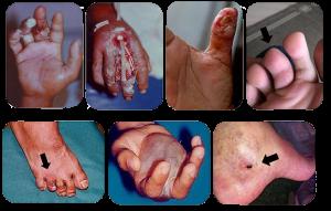 niquim-veneno-300x191 Niquim - pequeno e perigoso